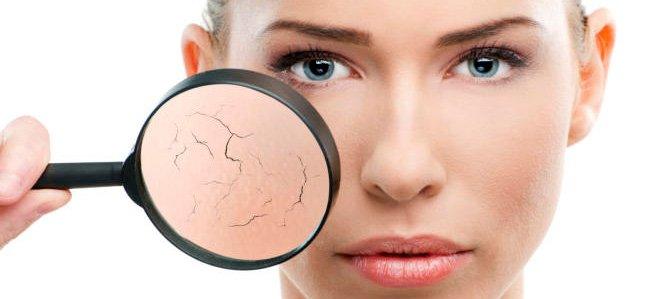 Características y cuidados para una piel seca